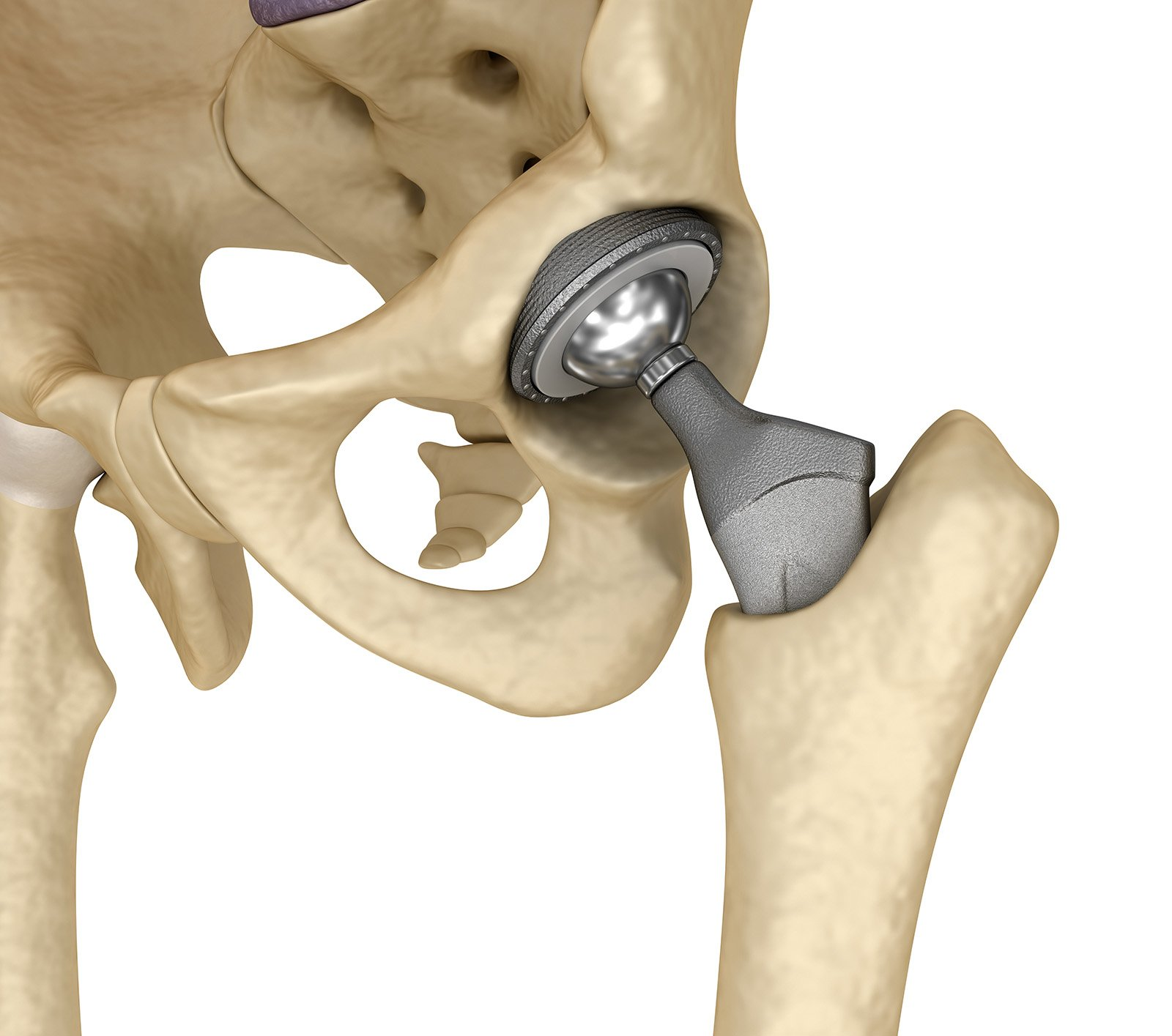 Product Liability practice - Hip Replacement slide